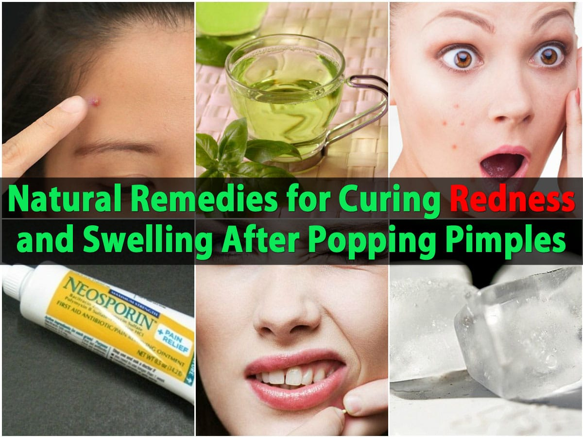Reduce acne swelling