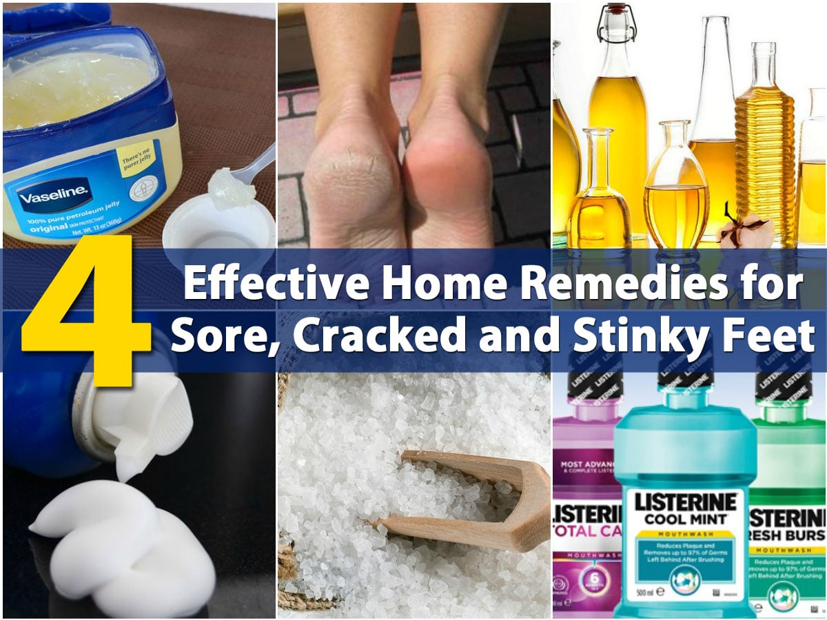 4 Effective Home Remedies for Sore, Cracked and Stinky Feet - DIY