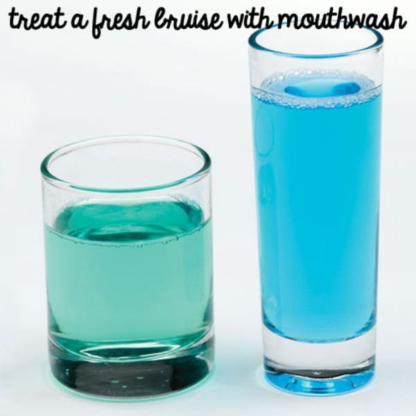 Treat Bruises with Mouthwash - 40 DIY Beauty Hacks That Are Borderline Genius