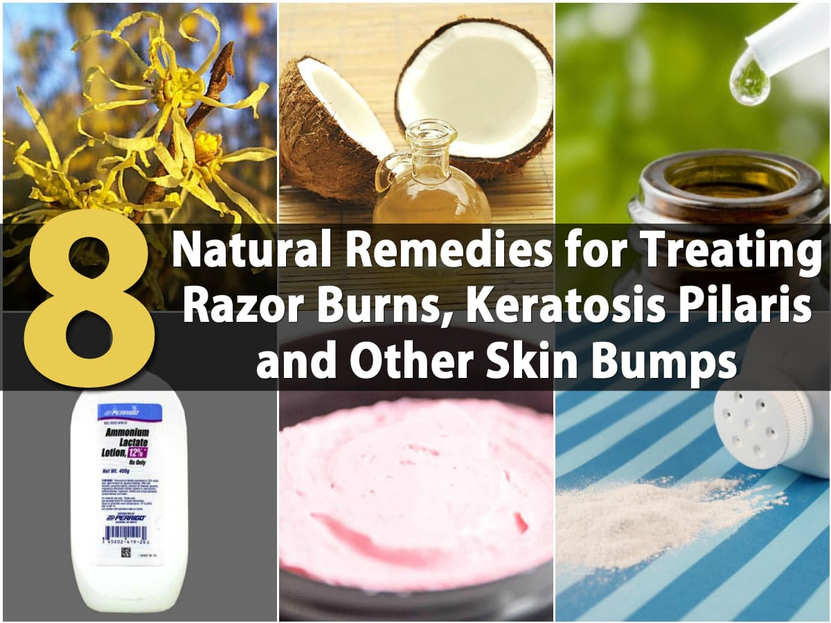 8 Natural Remedies For Treating Razor Burns Keratosis