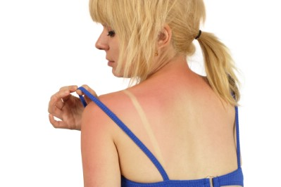 Treat a sunburn.