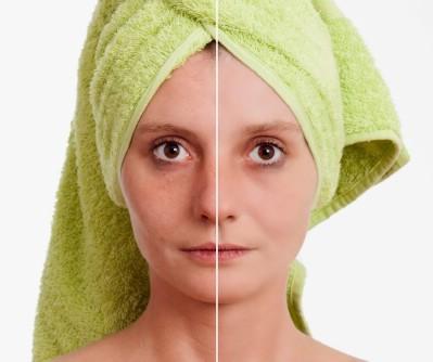 Shrink your pores.