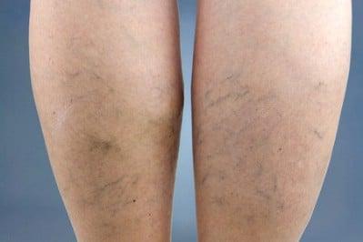 Shrink varicose veins.