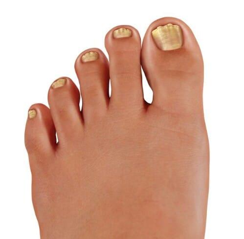 Get rid of nail fungus.